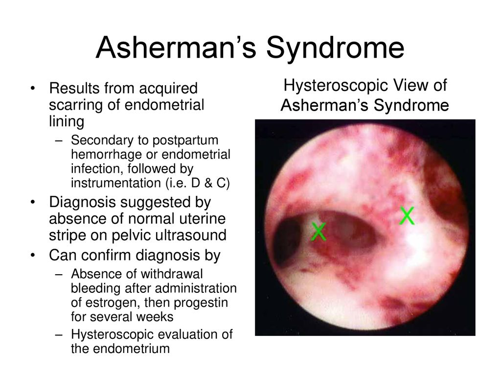 Hysteroscopic View of Asherman's Syndrome