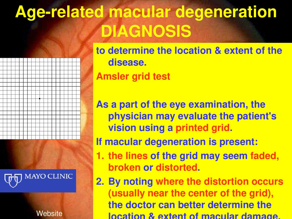 Age Related Macular Degeneration Disease Ppt Download
