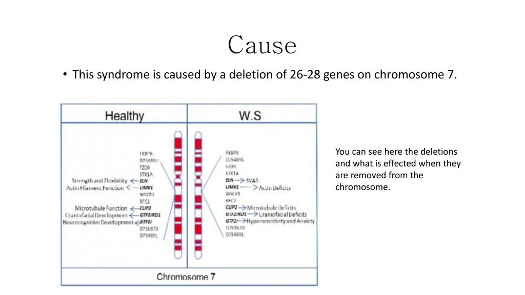 Chromosome Abnormalities Ppt Download Ring chromosome y syndrome is a rare chromosome y structural anomaly, with a highly variable phenotype, mostly characterized by short additional reported features include speech delay, obesity, and acanthosis nigricans. chromosome abnormalities ppt download
