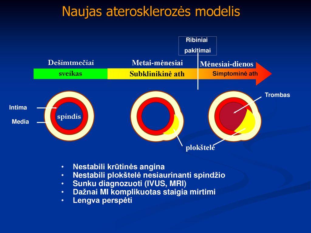 tinkamumas hipertenzijai tinktūros sveikata sergant hipertenzija