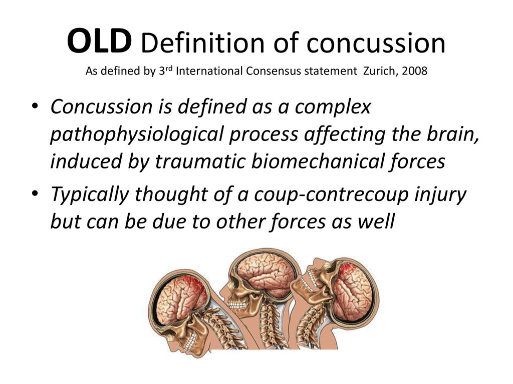 concussion in sport from the field to the clinic - ppt download