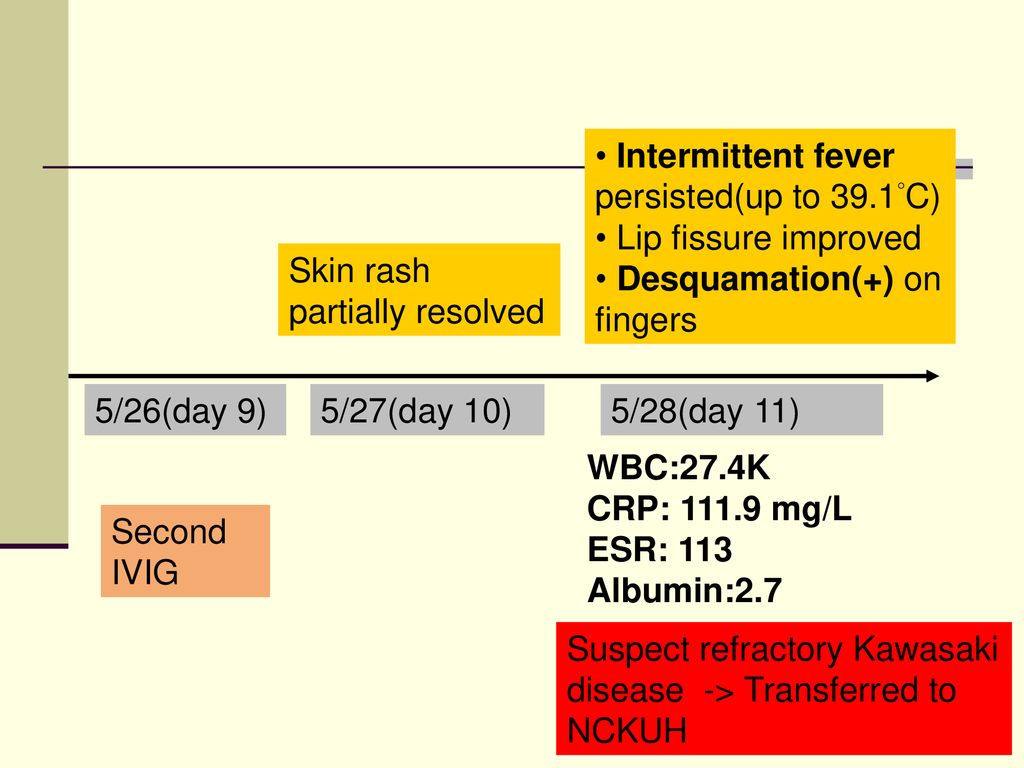 Intern seminar- Refractory Kawasaki disease - ppt download