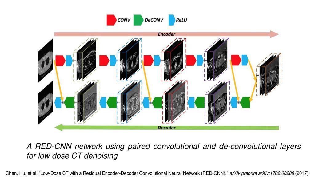 Low Dose CT Image Denoising Using WGAN and Perceptual Loss