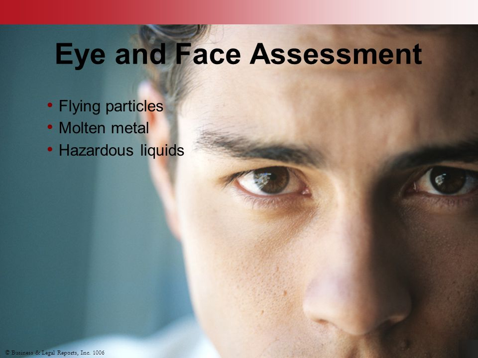Eye and Face Assessment