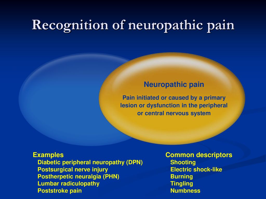 "understanding of pain "" nociceptive, neuropathic & mixed pain"