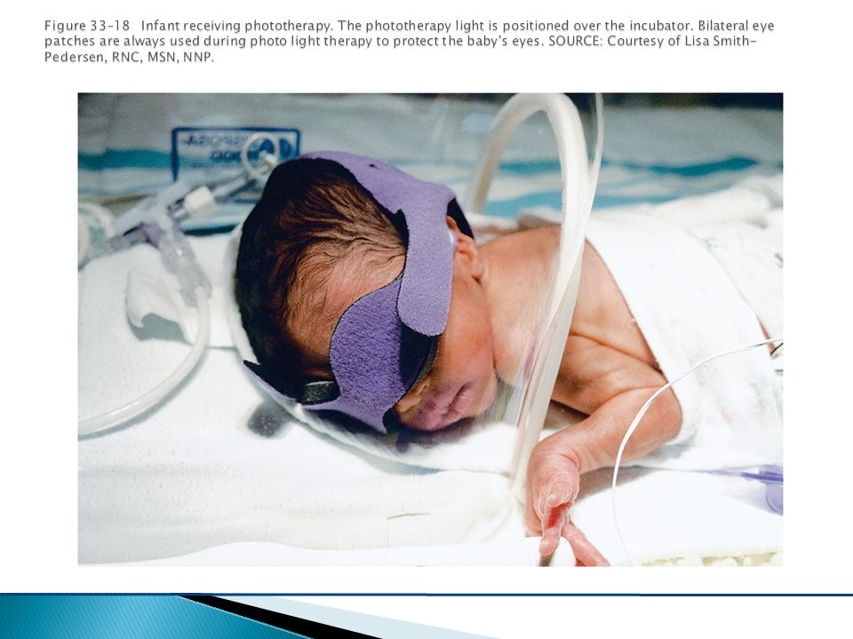 Figure 33–18 Infant receiving phototherapy