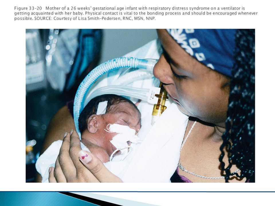 Figure 33–20 Mother of a 26 weeks' gestational age infant with respiratory distress syndrome on a ventilator is getting acquainted with her baby.