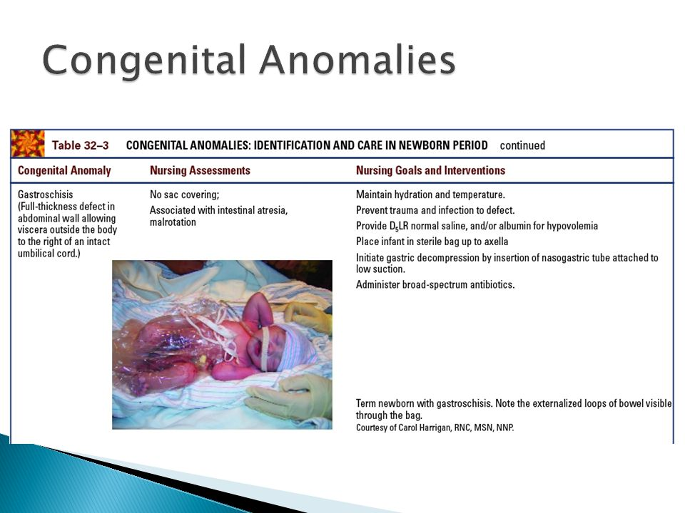 Congenital Anomalies Table 32–3 (continued) Congenital anomalies: identification and care in newborn period.