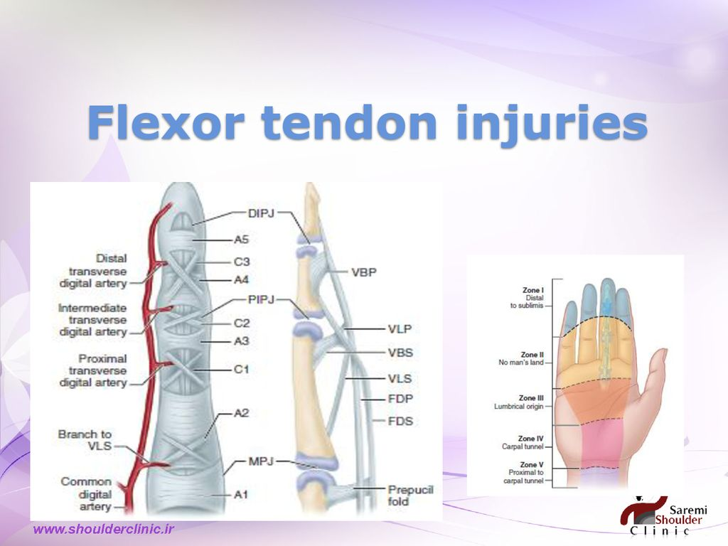 NERVE & TENDON injuries - ppt download