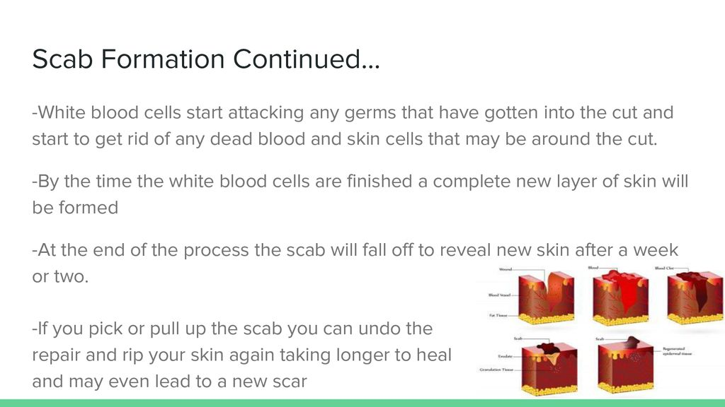 Process of Scab Formation and Scar Formation - ppt download
