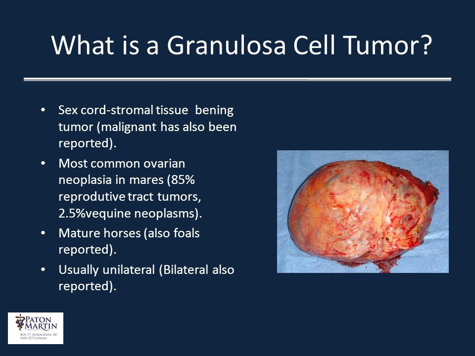 Laparoscopic Removal Of An Ovarian Granulosa Cell Tumor Ppt Video Online Download