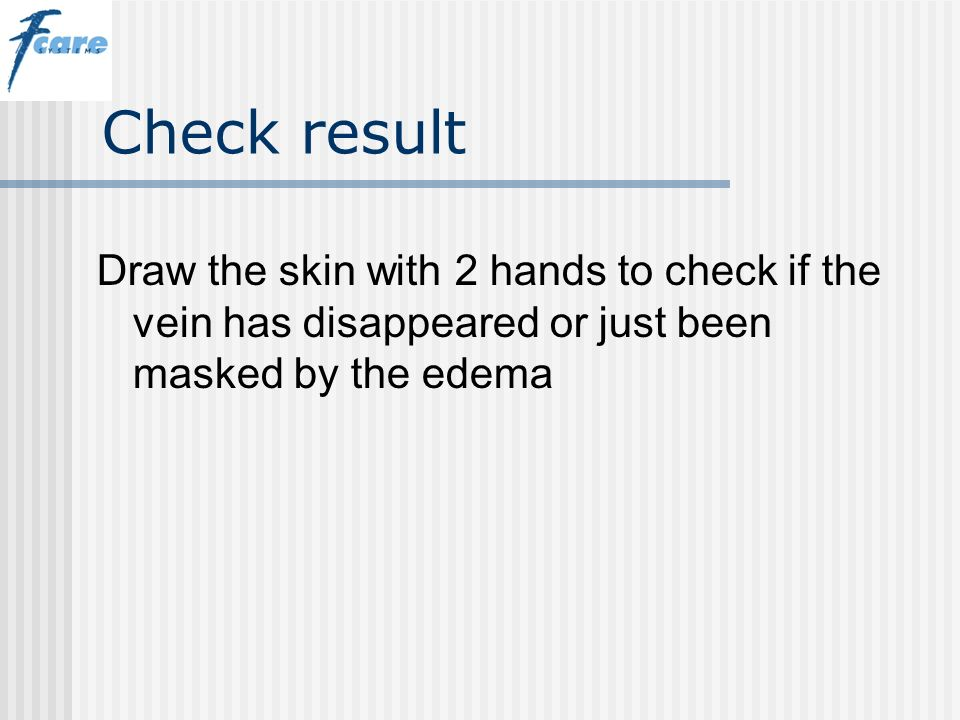 Check result Draw the skin with 2 hands to check if the vein has disappeared or just been masked by the edema.