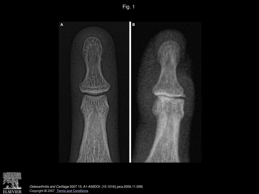 Atlas of individual radiographic features in osteoarthritis, revised