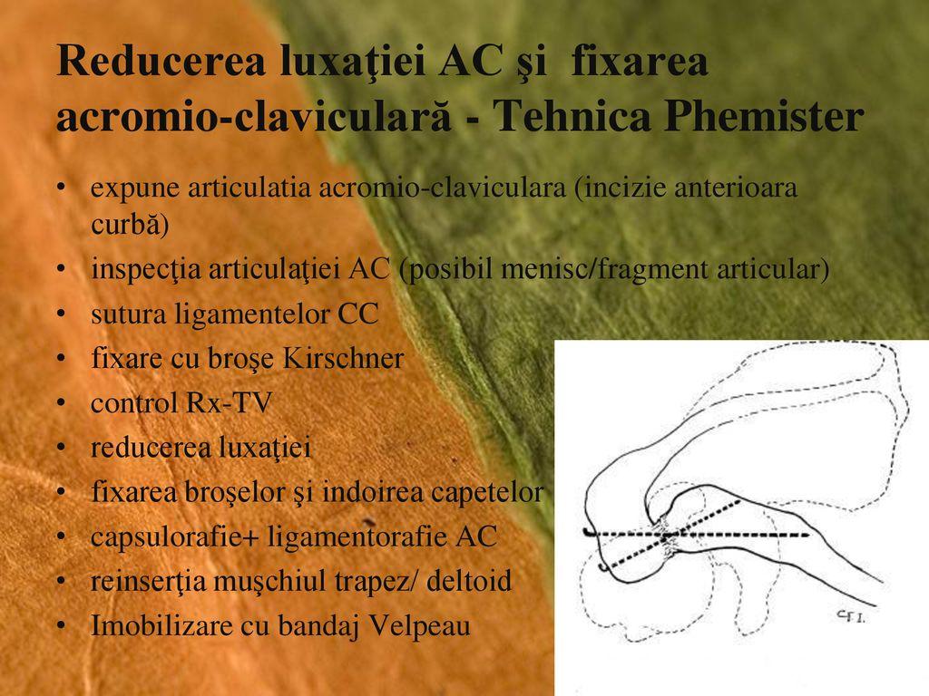 Deteriorarea articulației acromioclaviculare - Articulația acromioclaviculară