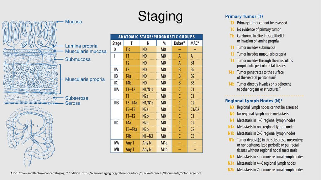 Colon Cancer Stages I Iii Ppt Download