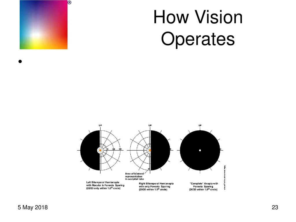 VISUAL SNOW Survey Results, Physiology & Path Forward - ppt download
