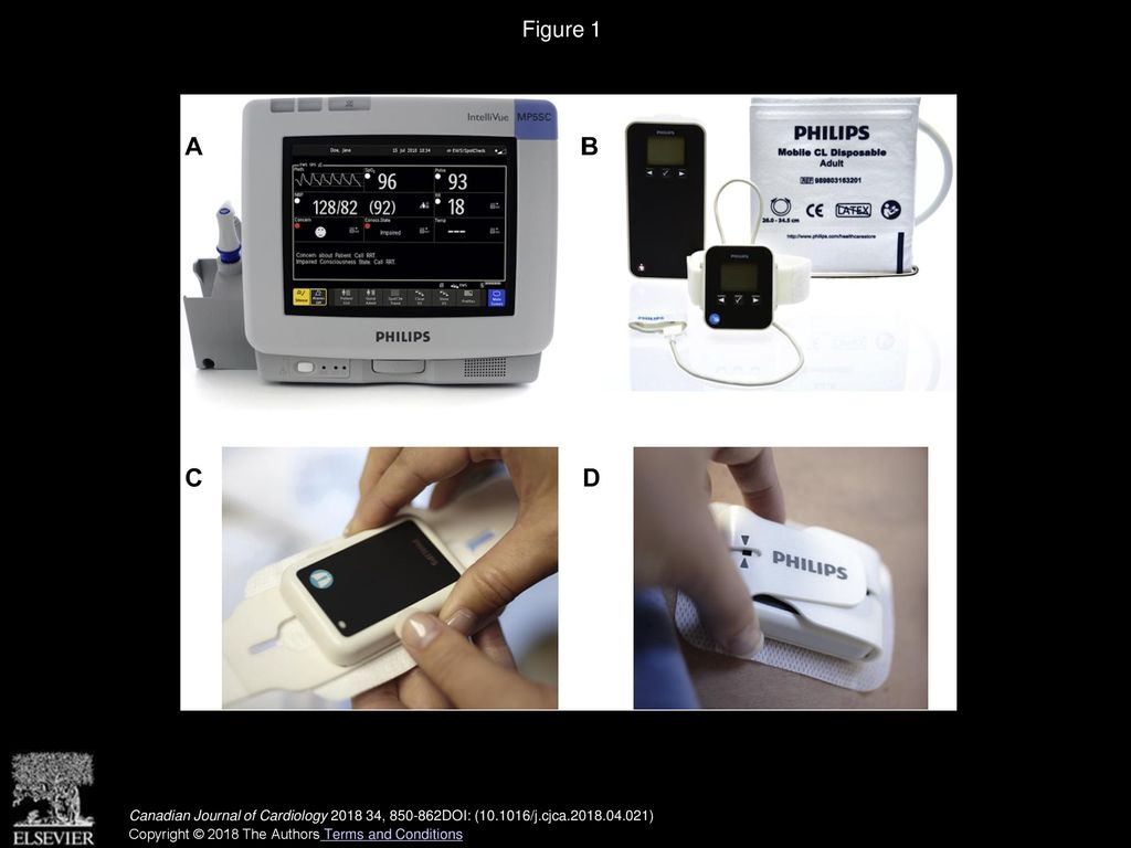 Postoperative Remote Automated Monitoring: Need for and