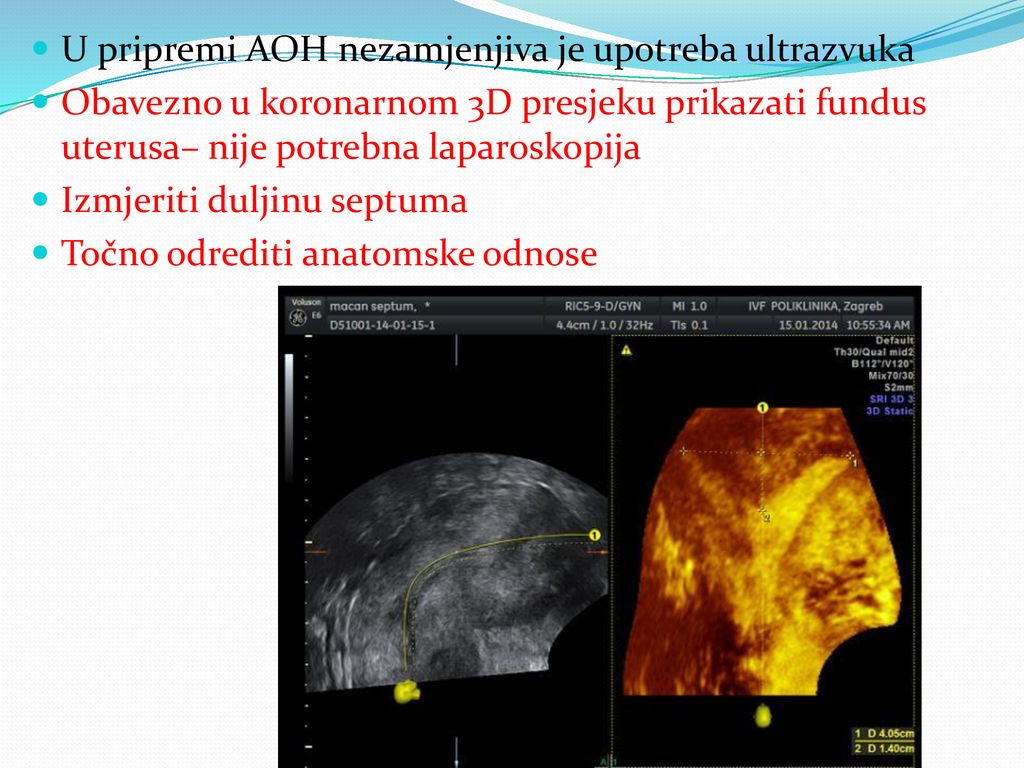 datiranje ultrazvuka u trudnoći