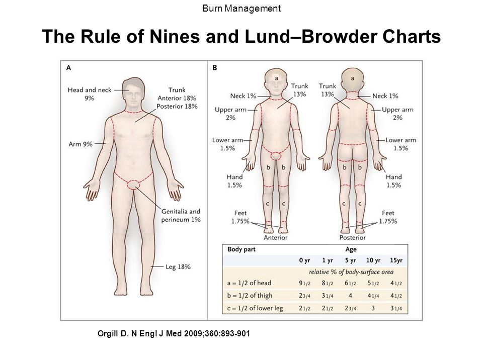 Luxury Rule Of Nines For Body Areas Anatomy Embellishment Anatomy