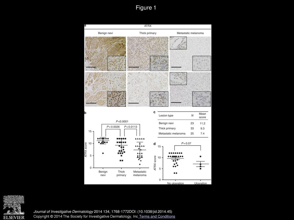 Decreased Expression of the Chromatin Remodeler ATRX