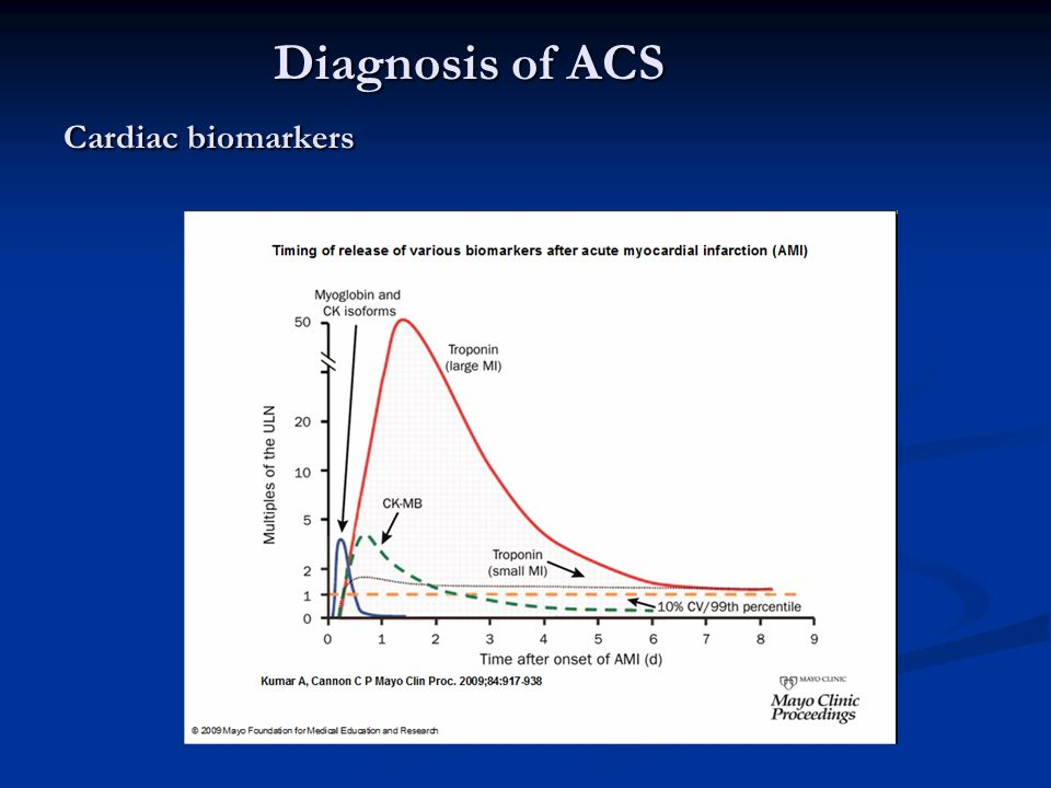 Diagnosis of ACS Cardiac biomarkers