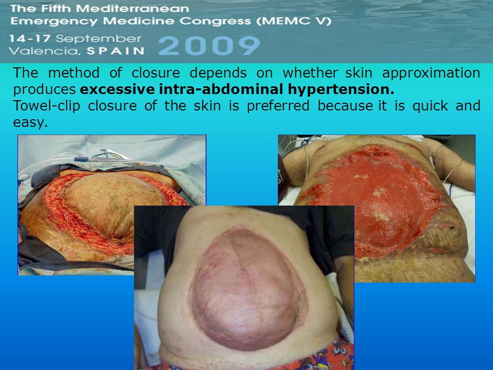 The method of closure depends on whether skin approximation produces excessive intra-abdominal hypertension.