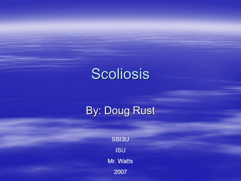 Scoliosis By: Doug Rust SBI3U ISU Mr. Watts 2007