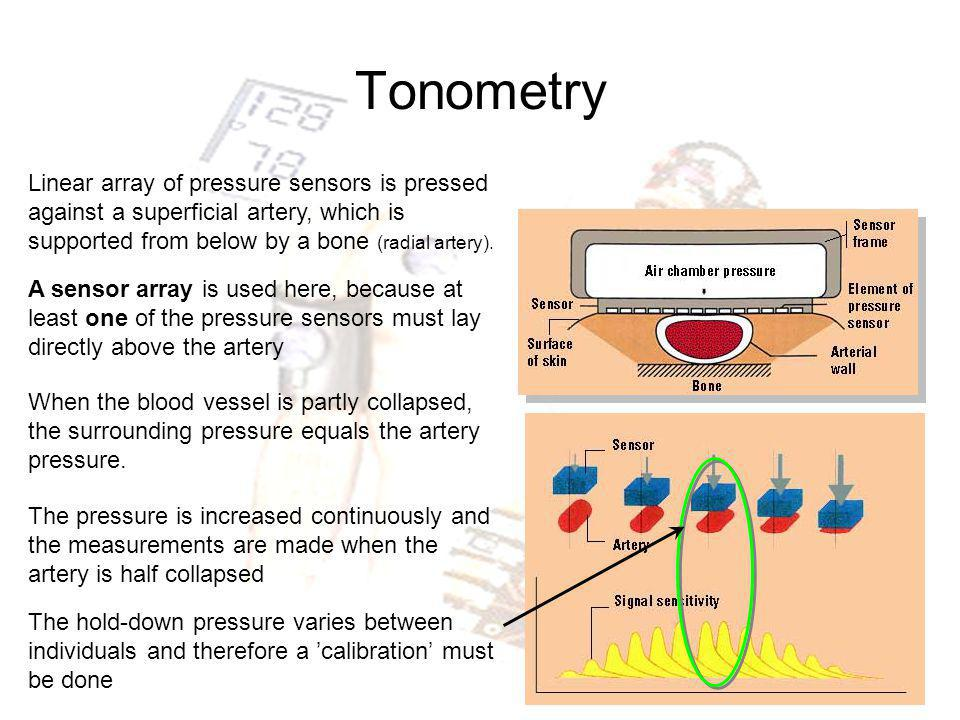 Tonometry Linear array of pressure sensors is pressed against a superficial artery, which is supported from below by a bone (radial artery).