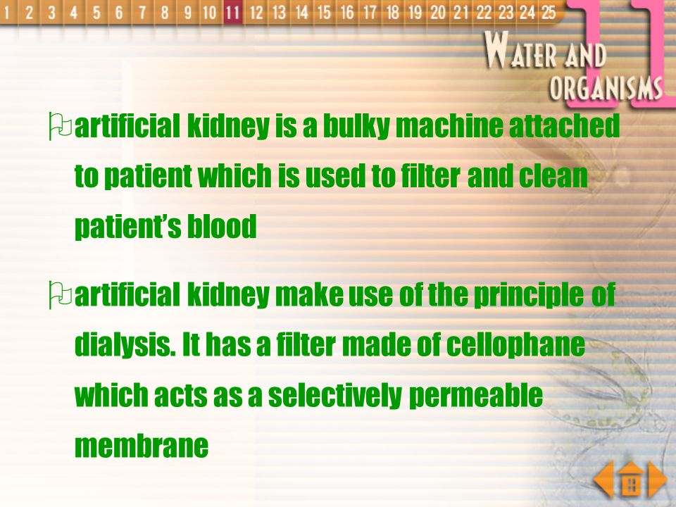 artificial kidney is a bulky machine attached to patient which is used to filter and clean patient's blood