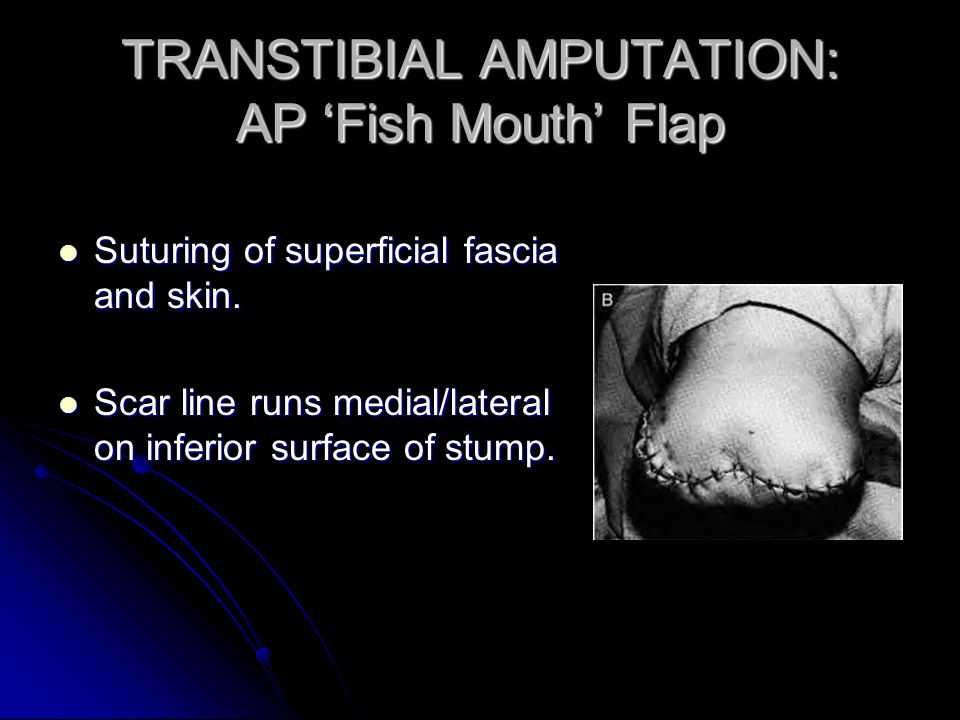 TRANSTIBIAL AMPUTATION: AP 'Fish Mouth' Flap