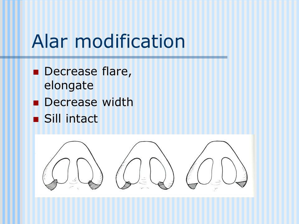 Alar modification Decrease flare, elongate Decrease width Sill intact