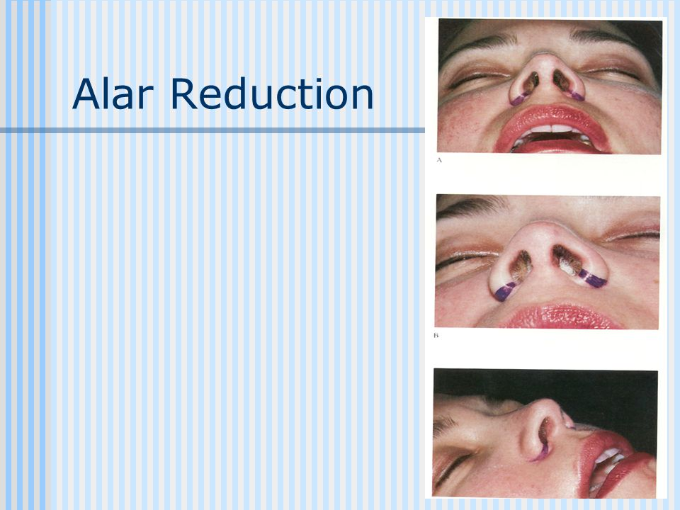 Alar Reduction