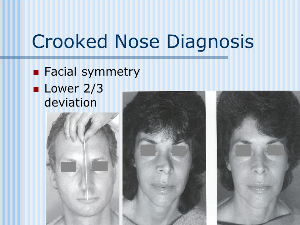 Crooked Nose Diagnosis