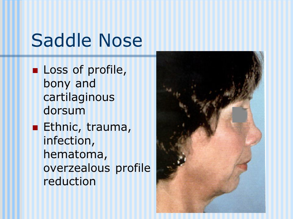 Saddle Nose Loss of profile, bony and cartilaginous dorsum