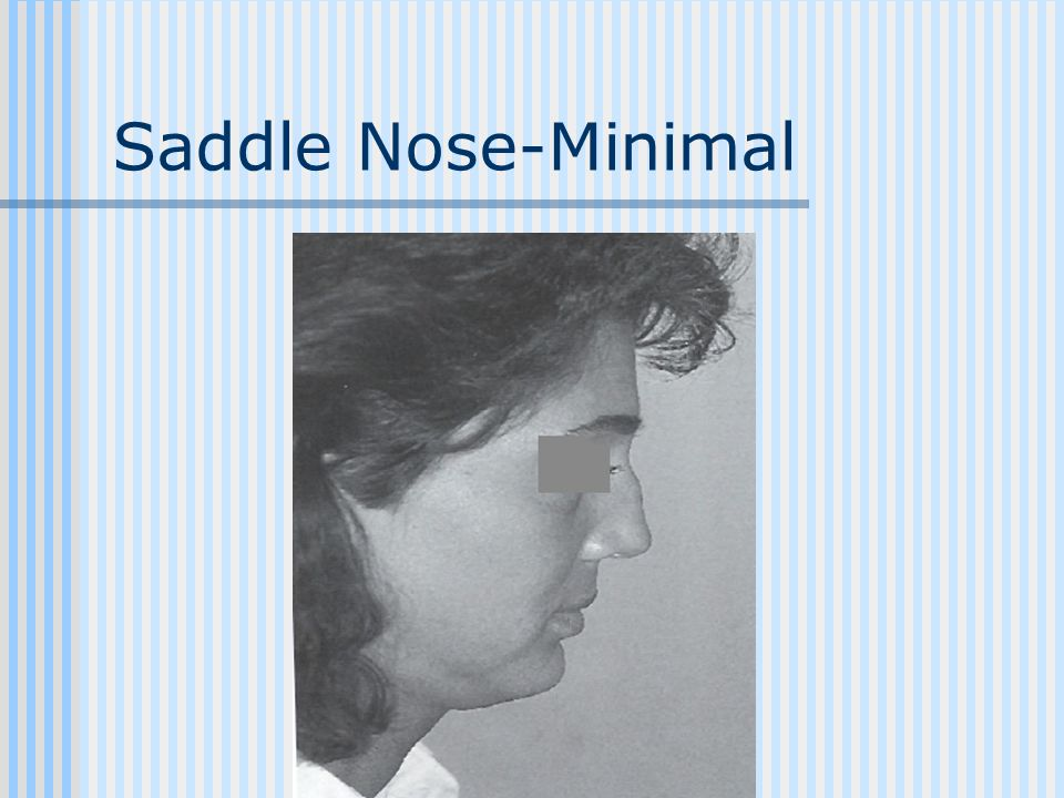 Saddle Nose-Minimal