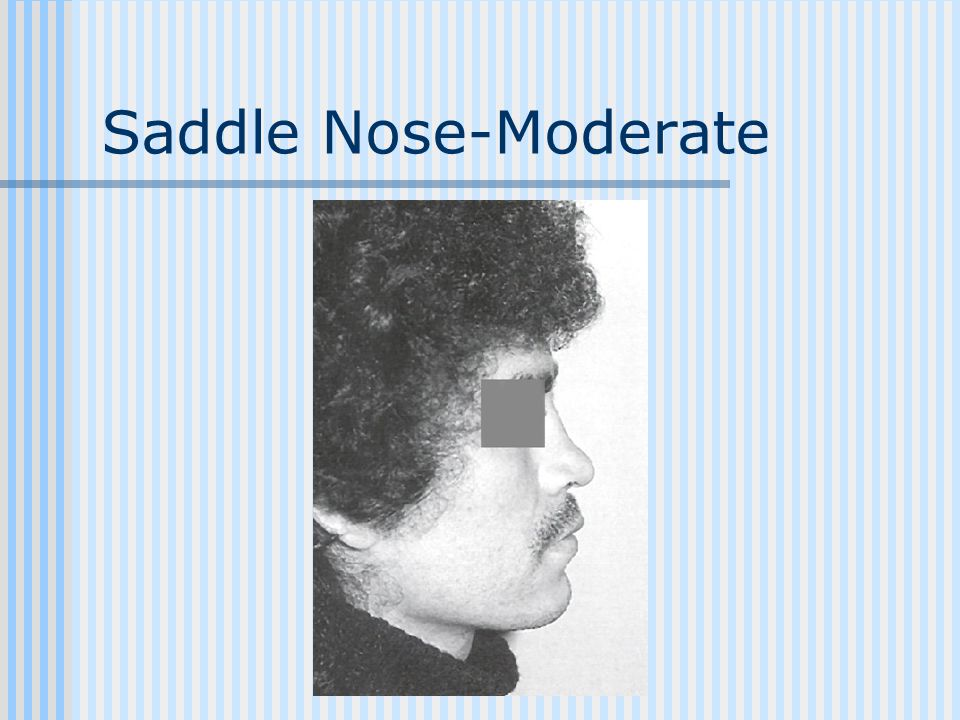 Saddle Nose-Moderate