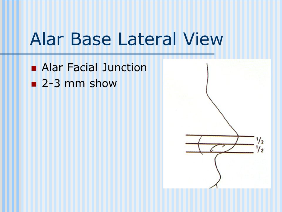 Alar Base Lateral View Alar Facial Junction 2-3 mm show