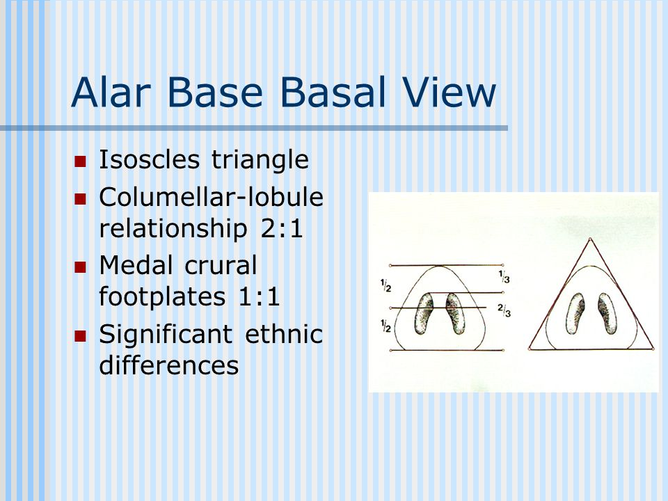 Alar Base Basal View Isoscles triangle
