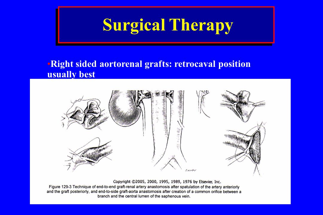 Surgical Therapy Right sided aortorenal grafts: retrocaval position usually best