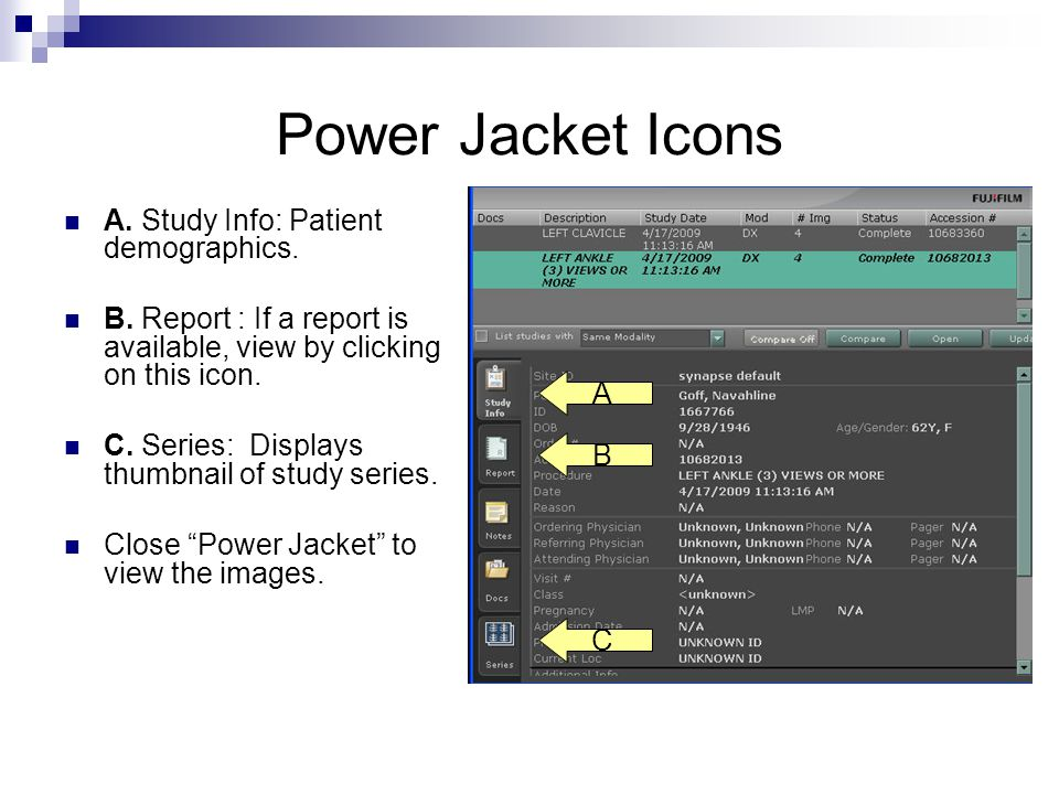 Power Jacket Icons A. Study Info: Patient demographics.