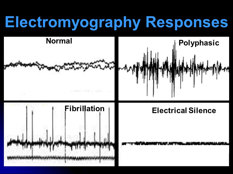 Electromyography Responses