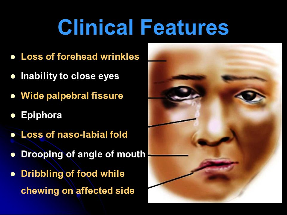 Clinical Features Loss of forehead wrinkles Inability to close eyes