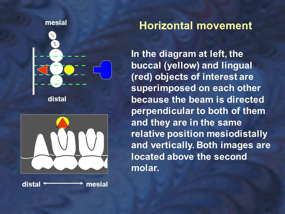 mesial Horizontal movement.