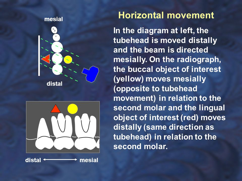 Horizontal movement mesial.