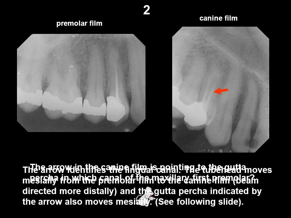 2 canine film. premolar film. The arrow in the canine film is pointing to the gutta percha in which canal of the maxillary first premolar