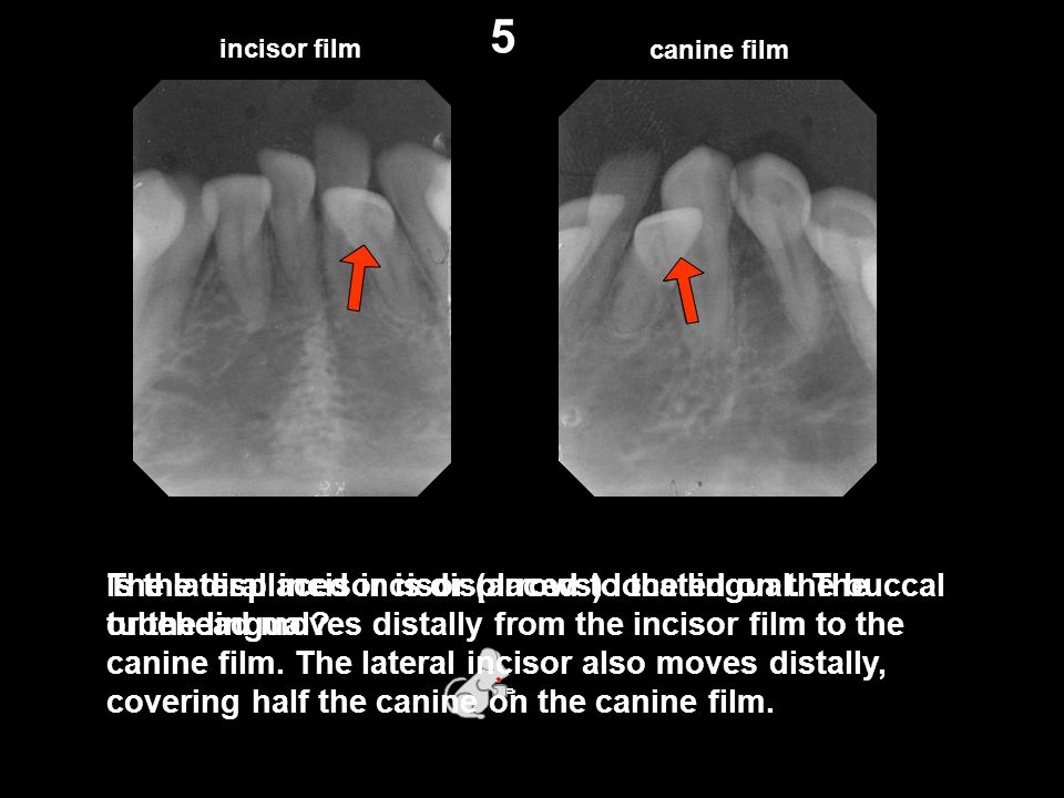 5 incisor film. canine film. Is the displaced incisor (arrows) located on the buccal or the lingual