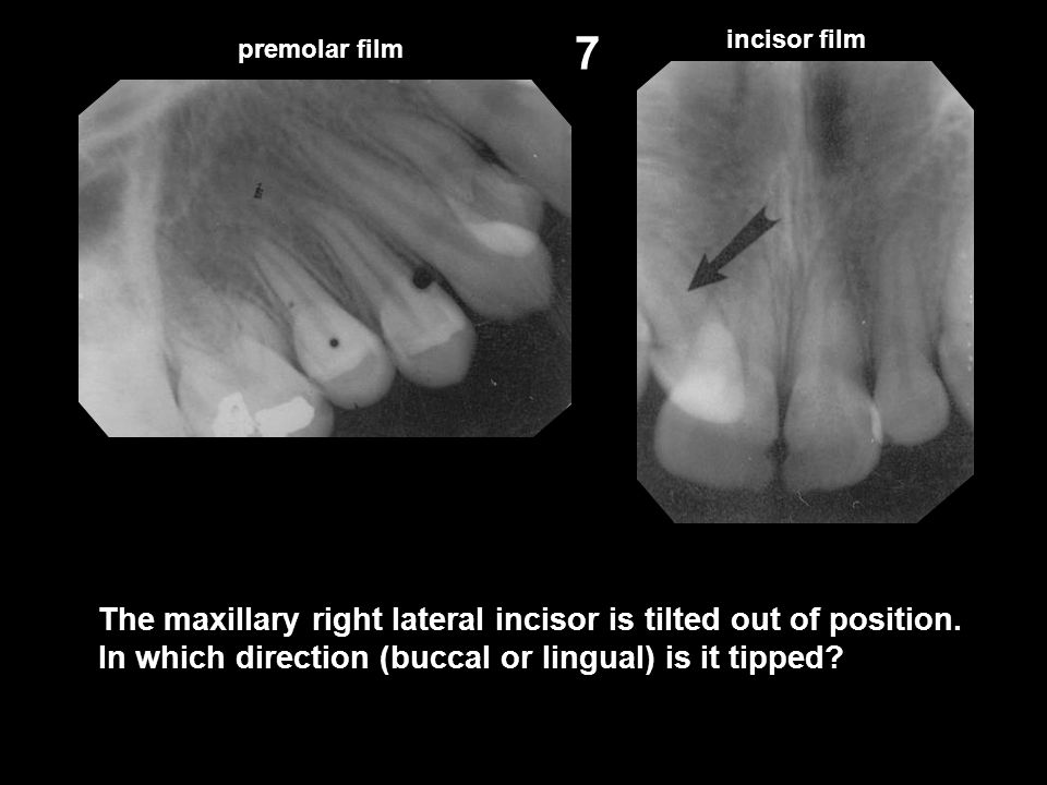 7 incisor film. premolar film. The maxillary right lateral incisor is tilted out of position.