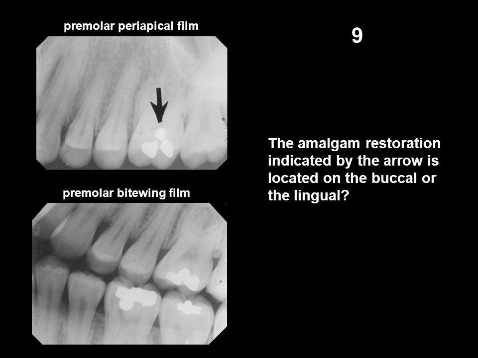 premolar periapical film