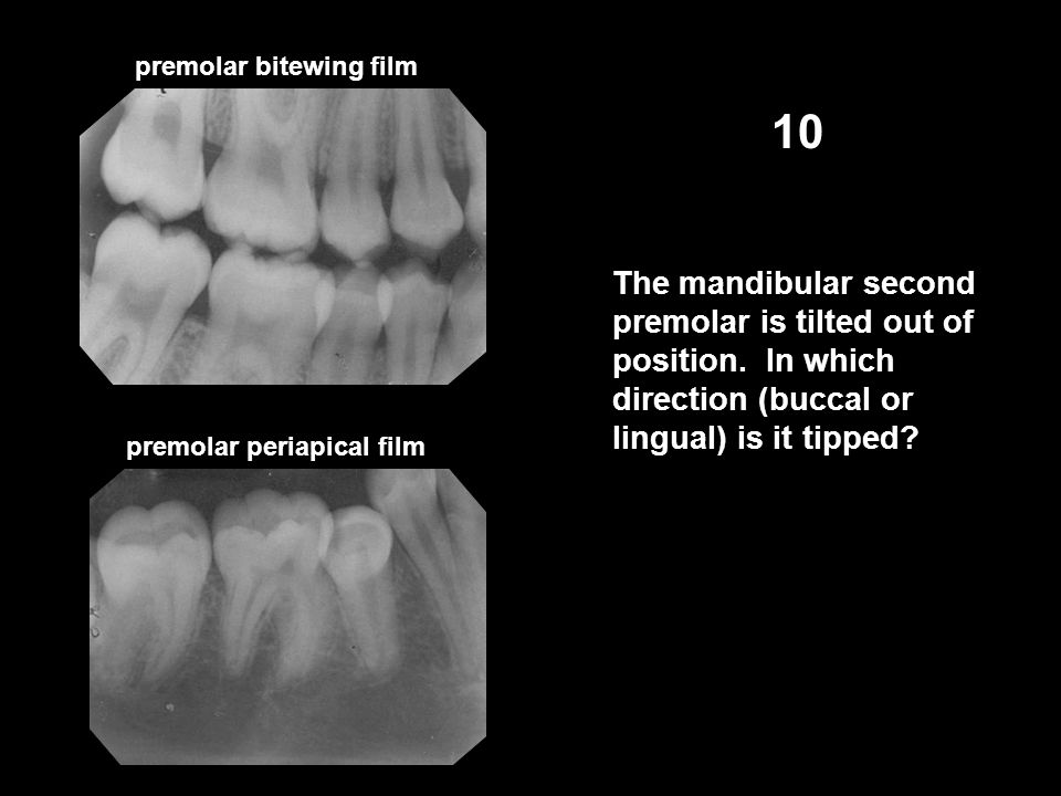 premolar bitewing film