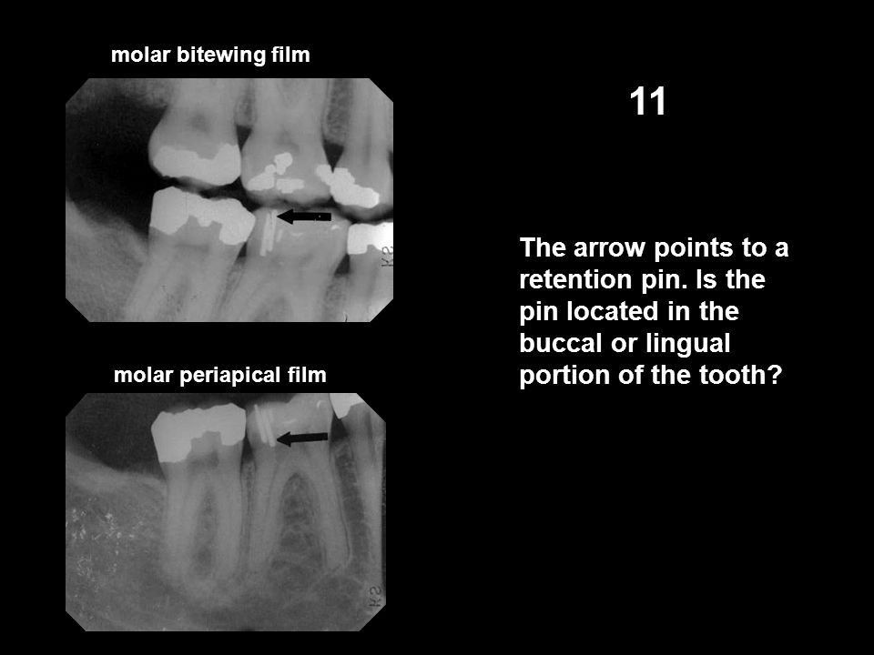 molar bitewing film 11. The arrow points to a retention pin. Is the pin located in the buccal or lingual portion of the tooth